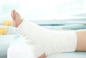 Well: When Is It Safe to Drive After Breaking a Bone?